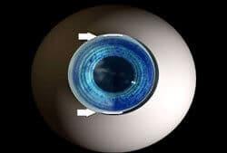 closeup or lens on an eyeball