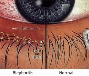 blepharitis vs normal eye