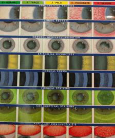 Contact Lens Complication Chart