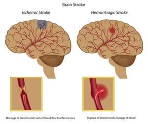 stroke diagram